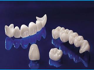 Bọc răng sứ quận 10 ở bác sĩ Mai Xuân Ngọc Nha khoa uy tín quận 10 hcm