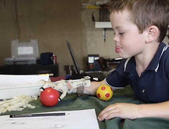 Criança usando prótese de mão criada em uma impressora 3D