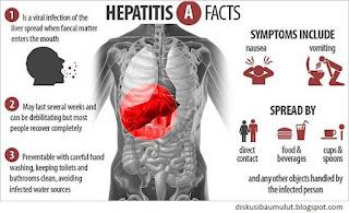 Penyakit Hepatitis dan cara mengobatinya lengkap