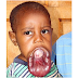 Zimbabwean Boy Prosper Mathe his Lip is Growing Too Fast for His Face Needs Help (Graphic Photo)