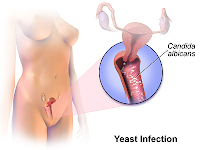 Understanding Vaginal Yeast Infections