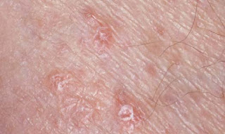 Lichen Planus Vulva Images, Symptoms, Causes, Treatment, Cancer