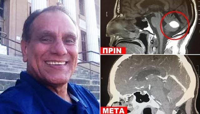 Άντρας με καρκίνο «νίκησε» τον όγκο στο κεφάλι με προσευχή
