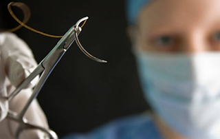 MÉTODOS DE SÍNTESE E CLASSIFICAÇÃO DAS SUTURAS SÍNTESE É o conjunto de manobras manuais e instrumentais destinadas a restituir a continuidade anatômica e funcional dos tecidos que foram separados na cirurgia ou por traumatismo.