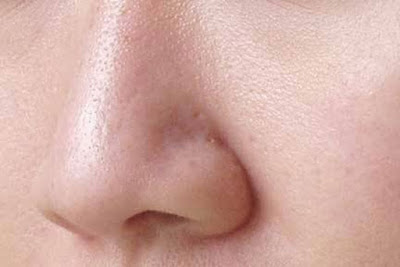 Cara alami mengecilkan pori-pori wajah besar