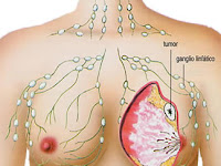 Pengobatan Alternatif Sakit Kanker Tanpa Operasi