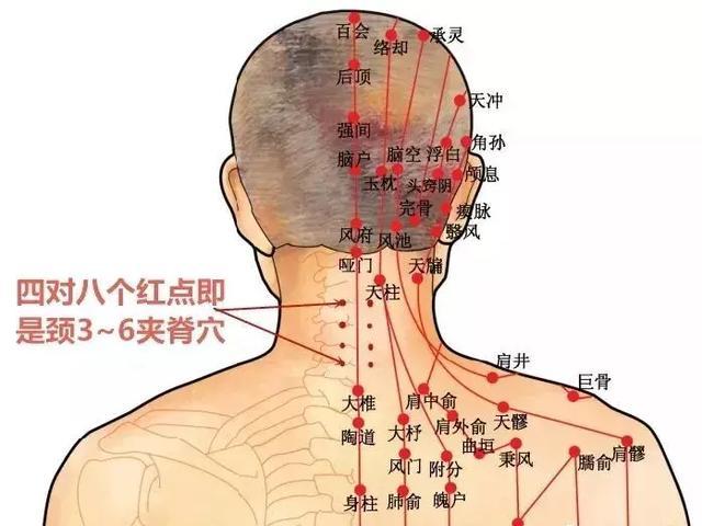 """頸肩問題,久治不斷根,是這裡""""寒氣""""沒有化解(疏通小腸經) - 穴道經絡引導"""