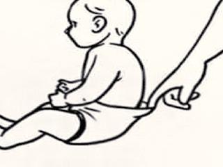 Gambar Kolik - Penyebab Kolik Dan Cara Mengobati Kolik Pada Anak