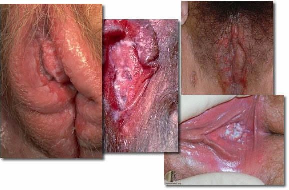 medical vaginal candida jpg 1080x810