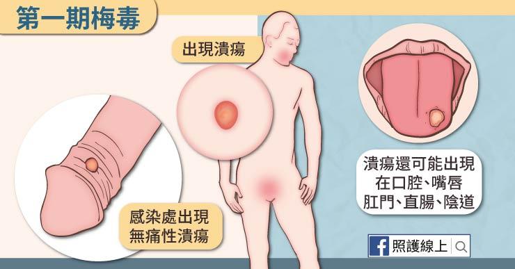 頭痛 性病 腎盂腎炎(腎盂炎)の原因、症状、治療 入院は必要?性行為でなる?感染経路、診療科、子供・妊婦のリスクも解説|アスクドクターズトピックス