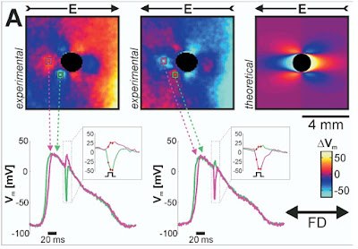 "Optical mapping to measure the transmembrane potential around an obstacle during a shock, from: Woods et al. ""Virtual Electrode Effects Around an Artificial Heterogeneity During Field Stimulation of Cardiac Tissue"" (Heart Rhythm, 3:751-752, 2006)."