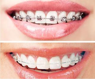 اسعار تقويم الاسنان في جدة