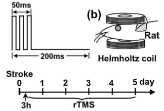 図:磁気刺激 脳梗塞