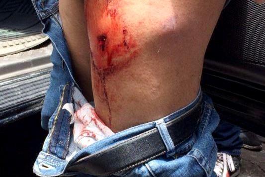Enfrentamiento violento entre ambulantes y policías en Puebla