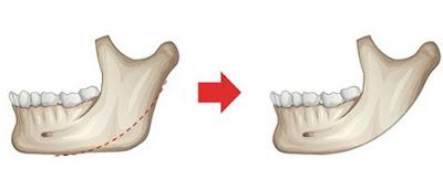 tư vấn cấy ghép răng implant -8