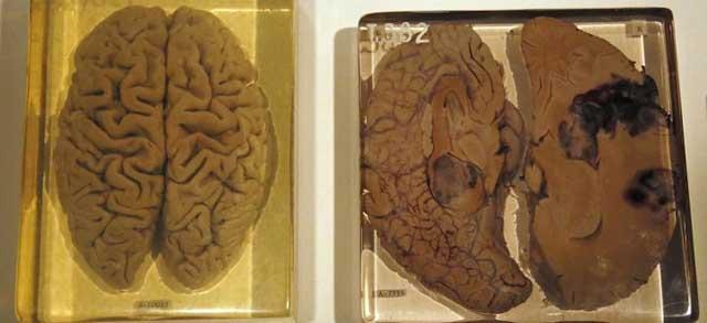 Otak Albert Einstein
