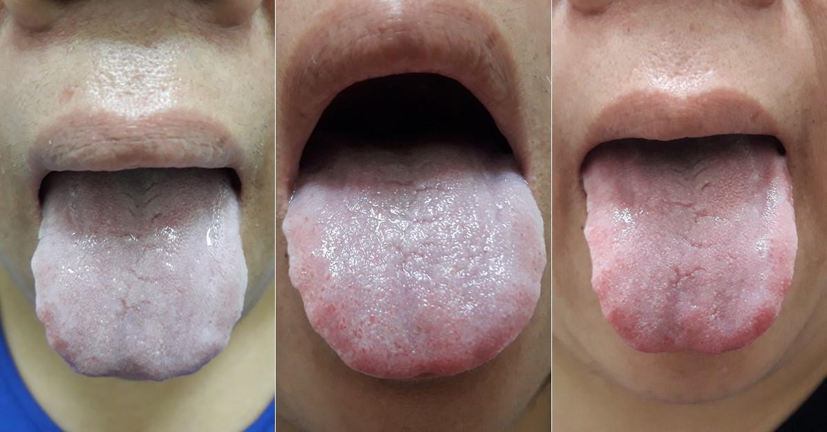 安成中醫: 舌診看見濕性體質的改變─白帶醫案
