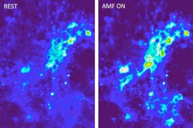 Las imágenes muestran una entrada de iones de calcio en las neuronas como resultado de una excitación magnetotérmica mediante campos magnéticos en presencia de nanopartículas magnéticas. (Imágenes: Cortesía de los investigadores)