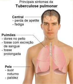 SP lança guia para prevenção de tuberculose para pacientes com HIV e premia unidades