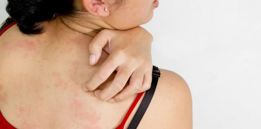 Symptoms Of Skin Cancer On Back Itching