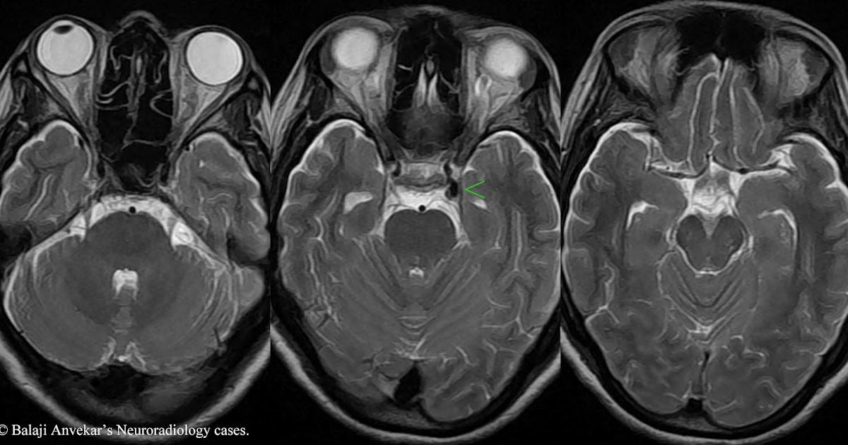 Neuroradiology Cases: Aneurysmal 3rd CN palsy  Neuroradiology ...