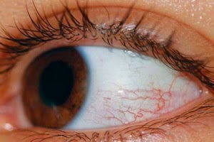 Are your eyes are always red? Maybe