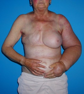 Breast cancer after lymphoedema
