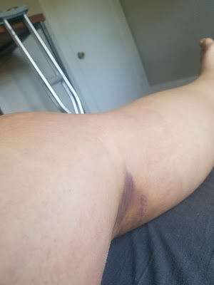 photo showing swollen leg with deep purple coloring around the knee crease