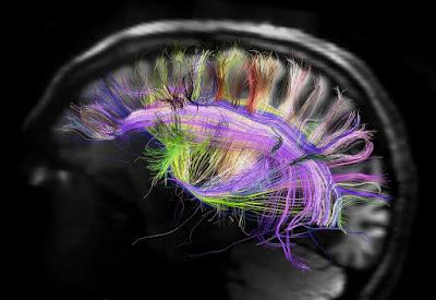 Resultado de imagem para Seguindo os rastros da consciência no cérebro. Entrevista com Enzo Tagliazucchi