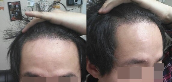 forhair korea, male hair transplant, hair transplant korea, before and after hair transplant korea