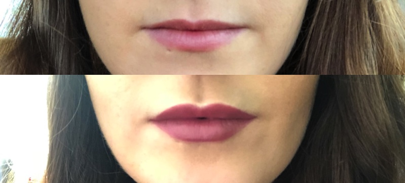 Juvederm Lip Fillers Experience before and after