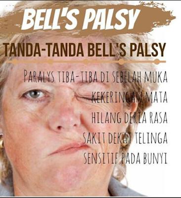Image result for ubati bell palsy dengan shaklee