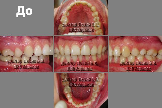 Рецидив ортодонтического лечения. Состояние прикуса до повторного лечивания.