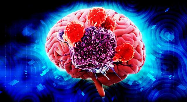 Inilah 4 Ciri dan Gejala Kanker Otak yang  Wajib Diketahui
