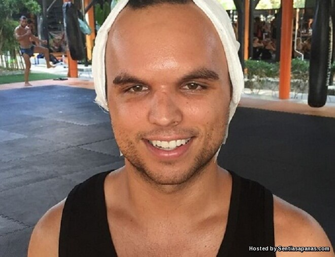 Dahi Peninju Muay Thai Retak Selepas Terkena Serangan Siku!