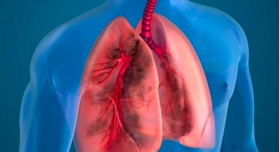 Cara membersihkan Paru-paru dari Fleg