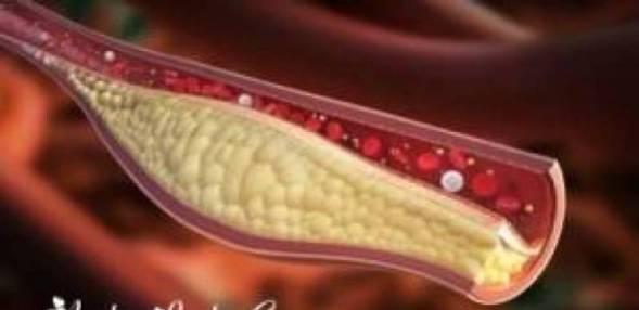 وصفة سحرية لتوسيع  الشرايين وتقليل الكوليسترول  في الدم