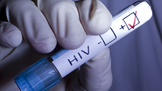 Casi la mitad de casos de VIH en Paraguay corresponden a menores de 30 años
