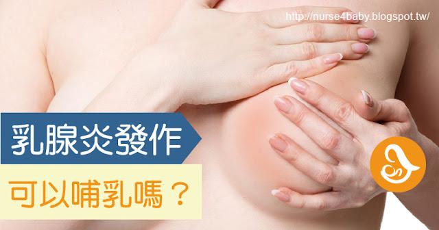 感染型乳腺炎塞奶乳腺炎母奶親餵擠奶