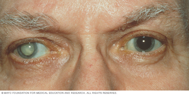 Just By Putting A Drop Of This Solution To Your Eye, The Cataracts Will Melt Away According To Scientists!