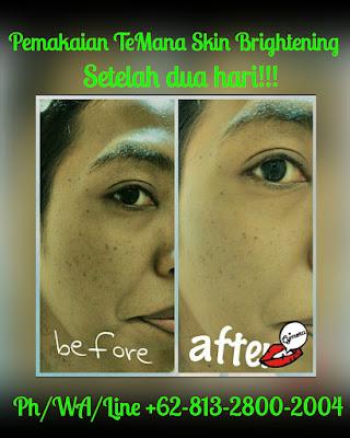 PROMO!!!, O813-28OO-2OO4, TeMana indonesia| Cream Pencerah Wajah Alami Terbaik