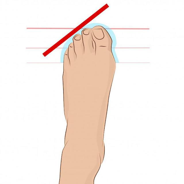 Το ρωμαϊκό πόδι