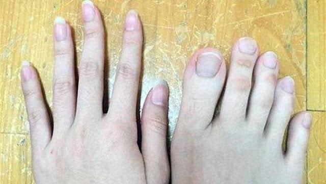 لن تصدقوا.. أهذه أصابع قدمين أم يدين؟  غريب وعجيب جدا