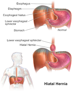 haital hernia