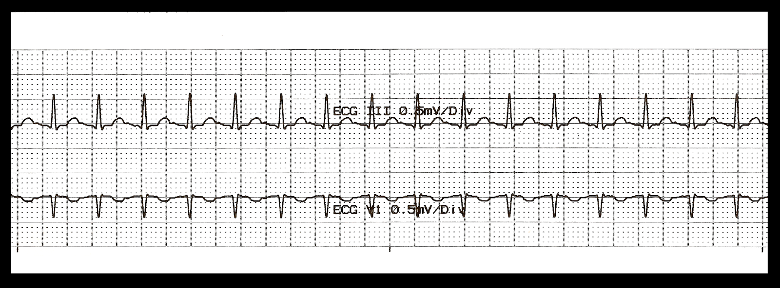 Float Nurse: Basic EKG Rhythm Test 24