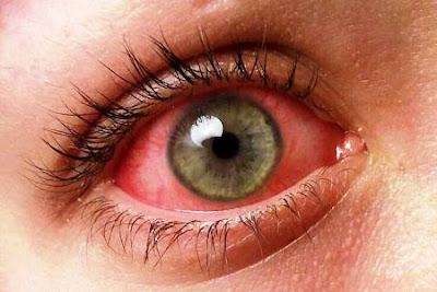 WASPADA! Inilah Bahaya Terlalu Sering Mengucek Mata