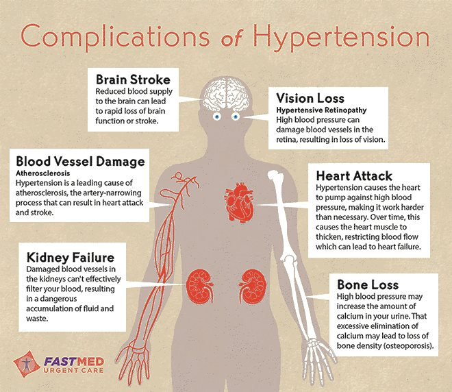 a discussion on the silent killer condition hypertension Hypertension can lead to a number of cardiovascular ailments, including heart attacks, congestive heart failure, heart rhythm disorders, and stroke because it usually causes no symptoms until one of these serious conditions develop, hypertension is often known as the silent killer.