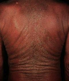 psoriasis ereitrodermica