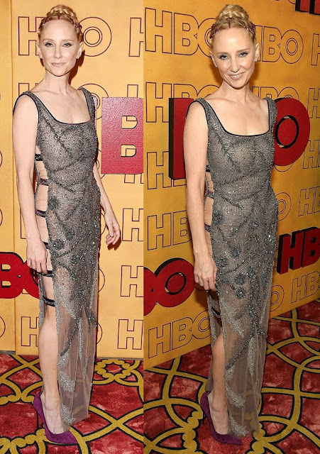 Anne Heche Wears Sexy Cutout Dress