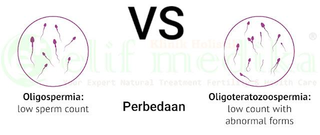 Oligozoospermia Vs OligoTeratozoospermia